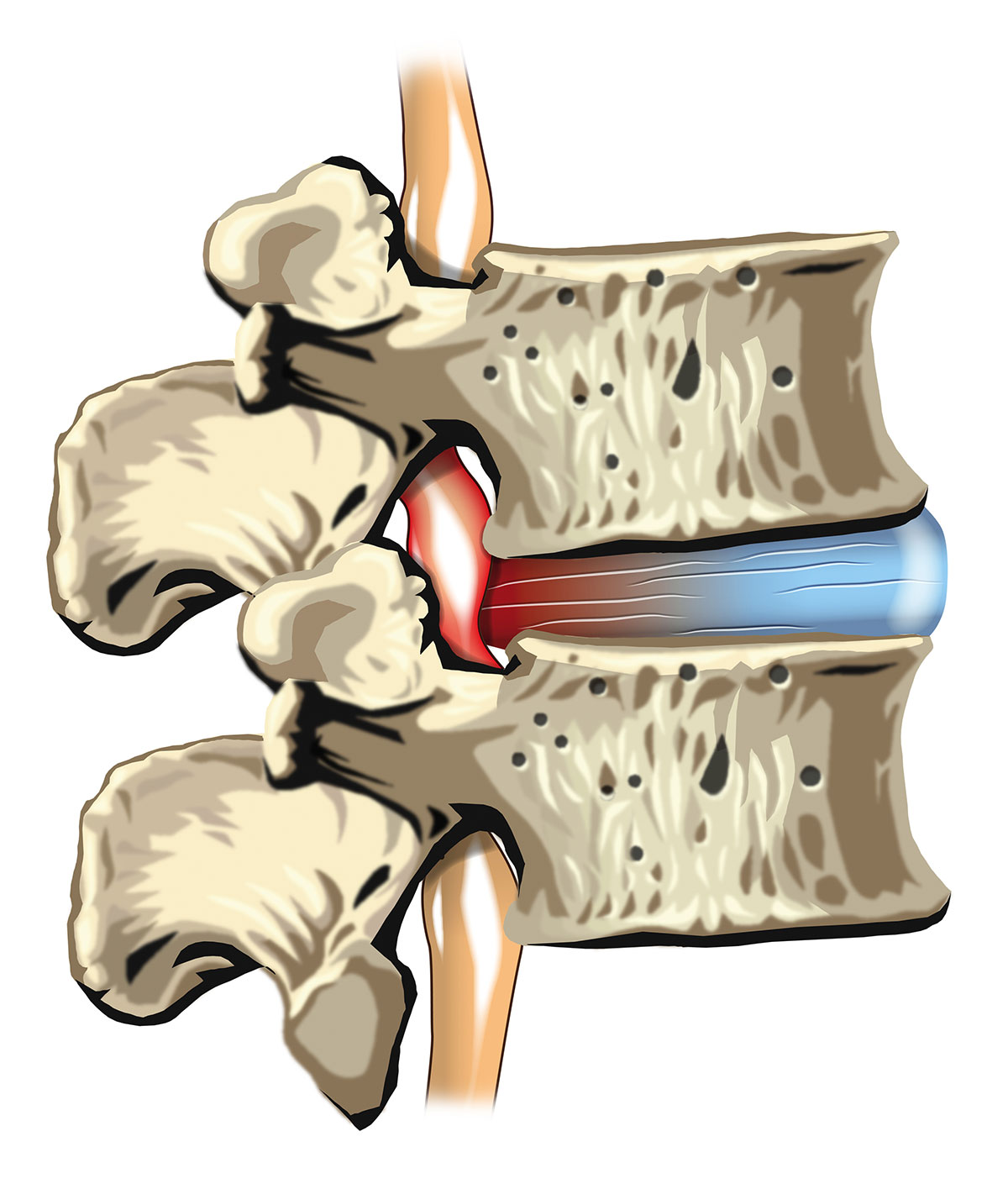 disc hernia | slipped disc | sciatica | bulging disc